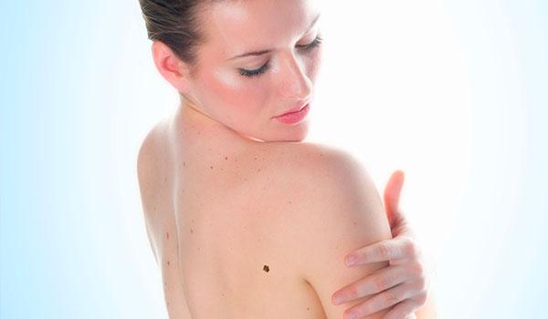 dermatologia-policlinicaloja